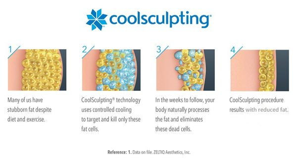 coolsculpting fat diagram