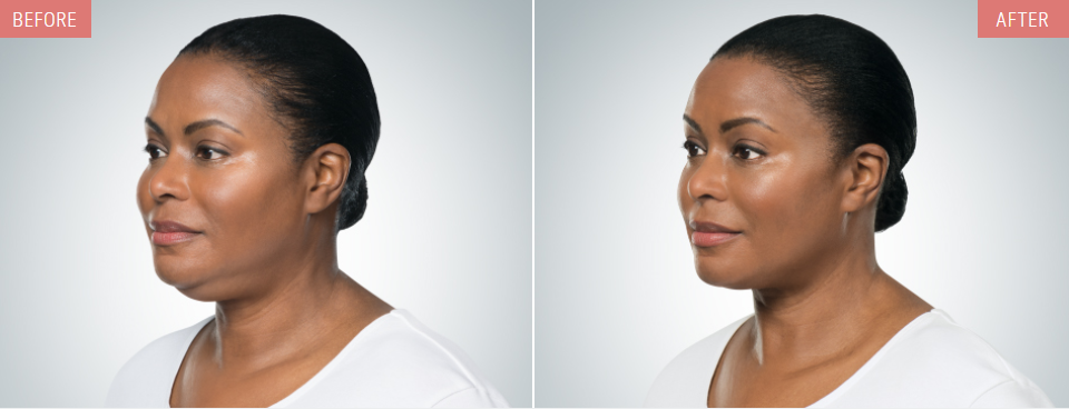 kybella woman before after quarter profile