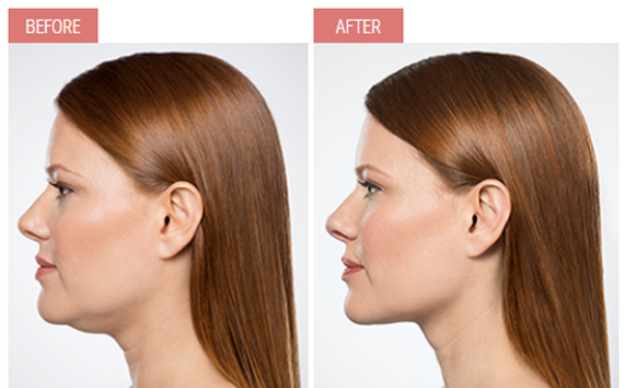 kybella profile woman chin tightening