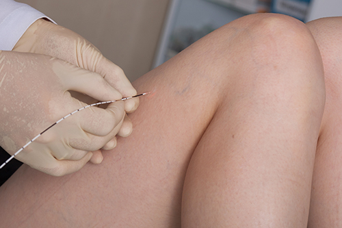 Laser Varicose and Spider Vein Treatment