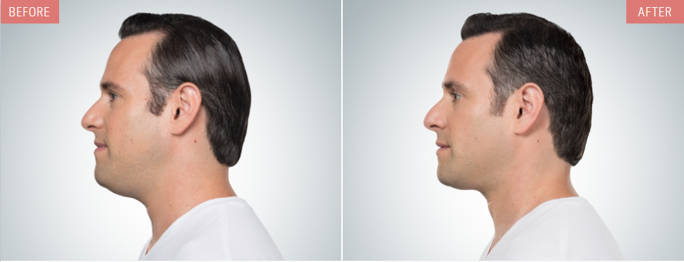 kybella before after man profile