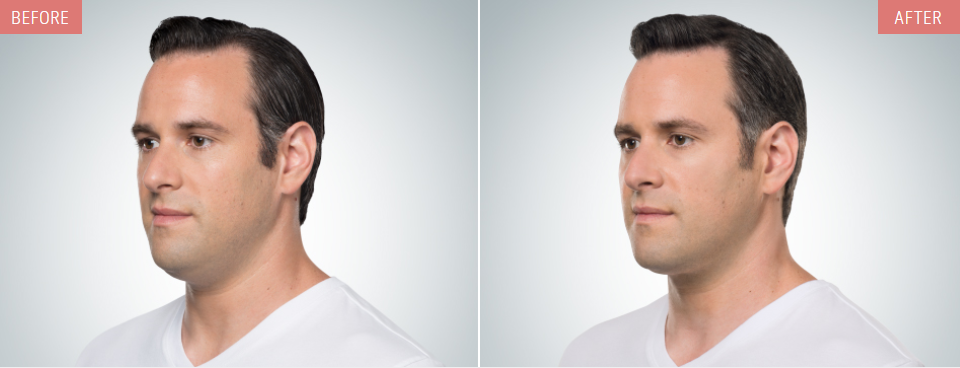 kybella before after man