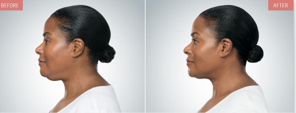 kybella before after woman profile