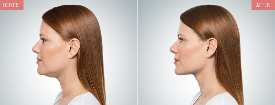 kybella before after profiles