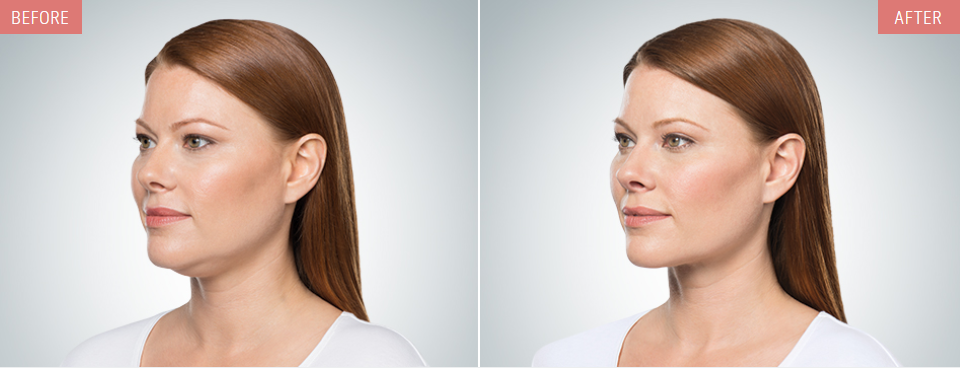 kybella before after pictures